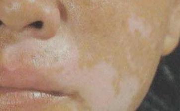 脸上的白癜风出现要怎么办