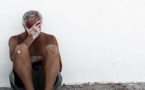 老年人白癜风治疗有什么注意事项